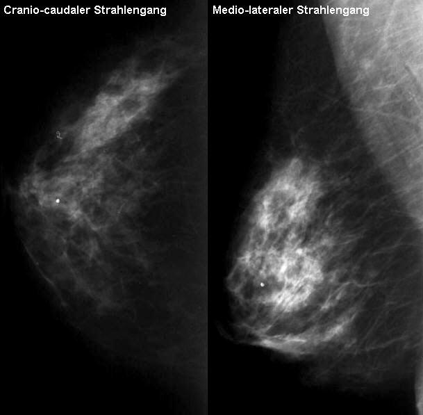 Die Kernspin- oder Magnet-Resonanz-Tomographie MRT