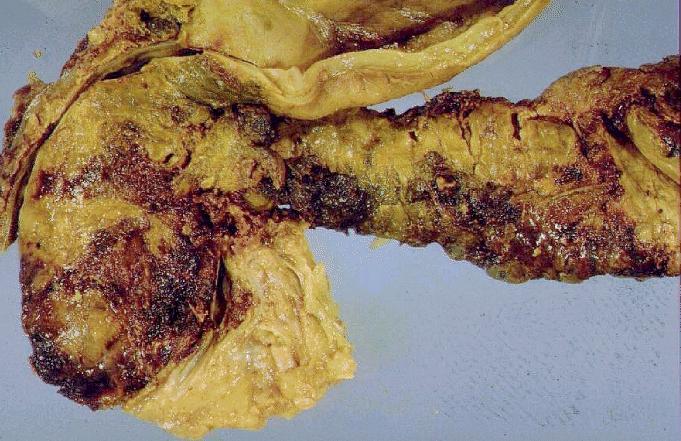 Diät bei schwerer Pankreatitis